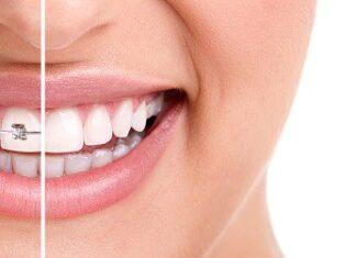 straight-my-teeth-reviews